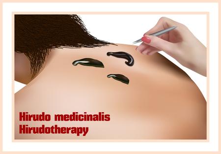 sanguijuela: Hirudo medicinalis. Hirudotherapy. El tratamiento con sanguijuelas.