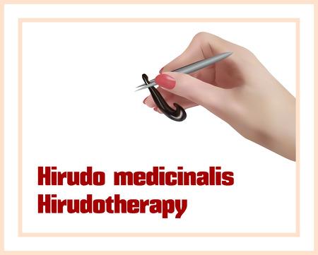 Hermaphrodite: Hirudo medicinalis. Hirudotherapy. Treatment with leeches.