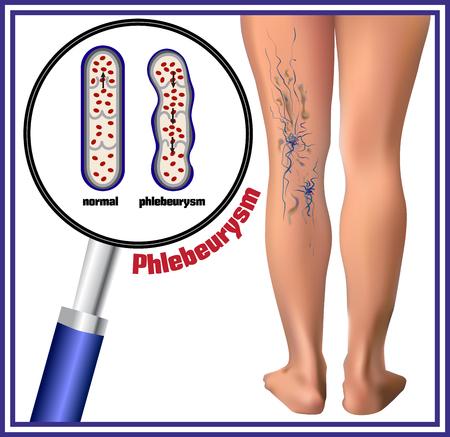 Phlebeurysm. Spataderen. Geneeskunde. Ziekten van de man.