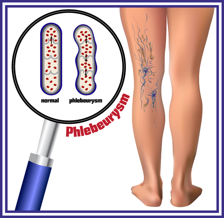 cut and blood: Phlebeurysm. Varicose veins. Medicine. Diseases of the man. Illustration