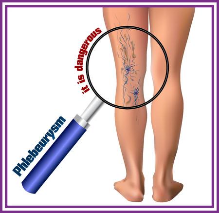 edema: Phlebeurysm. Varicose veins. Medicine. Diseases of the man. Illustration