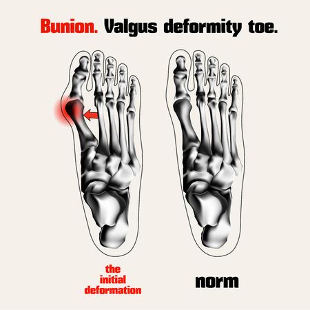 toe: Bunion. Valgus deformity toe.