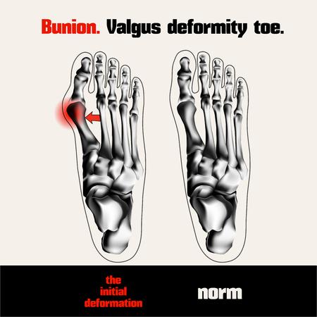 deformity: Bunion. Valgus deformity toe.