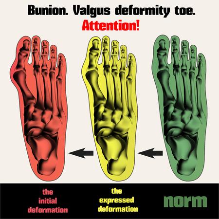 big toe: Bunion. Valgus deformity toe.