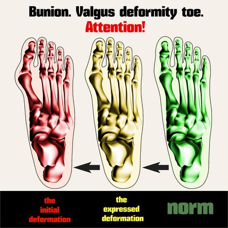 inwards: Bunion. Valgus deformity toe.