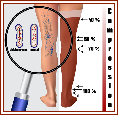compression: Phlebeurysm. Varicose veins. Medicine. Diseases of the man. Compression hosiery. Illustration