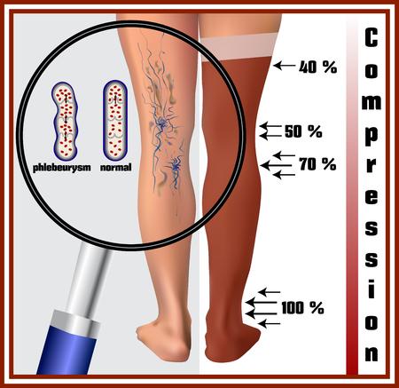 edema: Phlebeurysm. Varicose veins. Medicine. Diseases of the man. Compression hosiery. Illustration