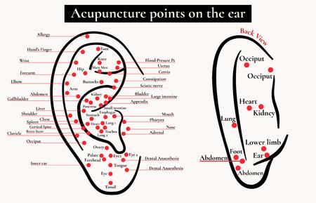 Zonas reflejas en la oreja. Puntos de acupuntura en el oído. Mapa de puntos de acupuntura (zonas reflejas) en el oído. Ilustración de vector