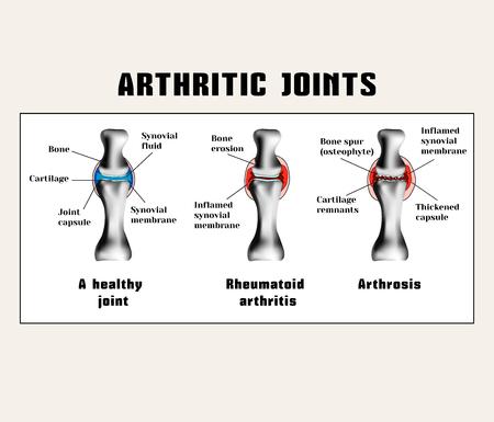 関節炎 (リウマチ性関節炎、関節症 (変形性関節症)) を結合します。 関節の病気です。  イラスト・ベクター素材
