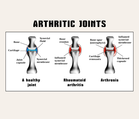 joins: Arthritic joins (rheumatoid arthritis, arthrosis (osteoarthritis)). The disease of the joints.