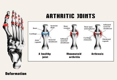 Artretyczne przyłącza (reumatoidalne zapalenie stawów, choroba zwyrodnieniowa stawów (choroba zwyrodnieniowa stawów)). Choroby stawów. Ilustracje wektorowe