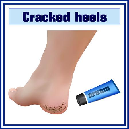 redness: Cracked heels. Foot diseases. Illustration