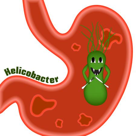 Helicobacter pylori. Geschwüren. Die Erkrankung des Magen und Zwölffingerdarm. ? Aricature, cartoon. Standard-Bild - 56909655