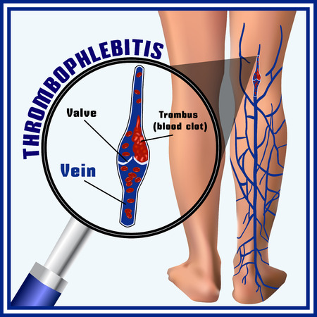 clots: Thrombophlebitis, blood clots in the veins. Embolism. Thrombosis. Phlebemphraxis.