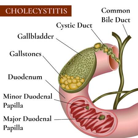 bile: ?holecystitis. Inflammation of the gallbladder and bile ducts. Gallstones. Cholelithiasis. Calculous cholecystitis. Illustration