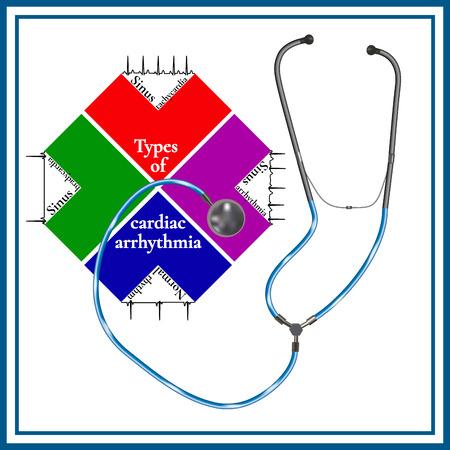 Types of cardiac arrhythmia: sinus tachycardia, sinus arrhythmia, sinus bradycardia, normal rhythm. Cardiogram. Phonendoscopes. Ilustracja