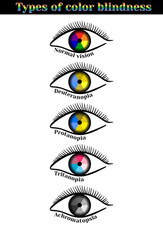 blindness: Types of color blindness. Violation of color perception: deuteranopia, protanopia, tritanopia, achromatopsia. Illustration