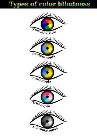 Types of color blindness. Violation of color perception: deuteranopia, protanopia, tritanopia, achromatopsia. Ilustracja