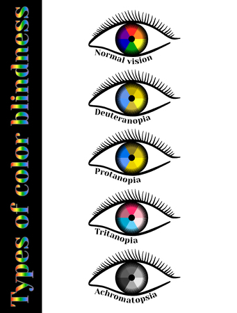 perception: Types of color blindness. Violation of color perception: deuteranopia, protanopia, tritanopia, achromatopsia. Illustration