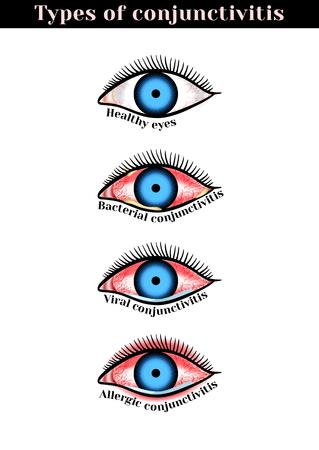 Conjunctivitis types. Inflammatory diseases of eyes.