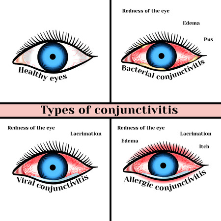 contagious: Conjunctivitis types. Inflammatory diseases of eyes.