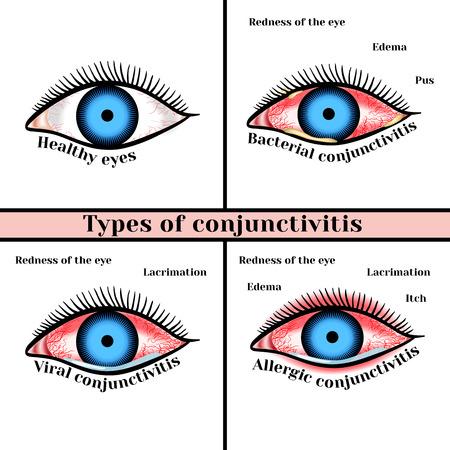 Konjunktivitis-Typen. Entzündliche Erkrankungen der Augen. Standard-Bild - 60618776