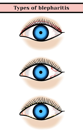 edema: Blepharitis. Purulent, inflammatory eyes disease. Illustration