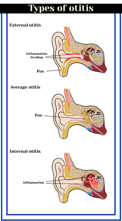 中耳炎の種類: 内外平均中耳炎。耳の炎症性疾患。  イラスト・ベクター素材