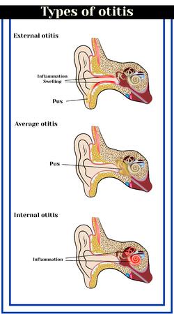 eustachian: Types of otitis: external, average and internal otitis. Inflammatory diseases of the ear.