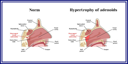 Location of adenoids.The structure of the nasopharynx. Norm and hypertrophy of adenoid.