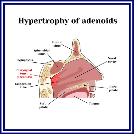 snore: Location of adenoids.The structure of the nasopharynx. Hypertrophy of adenoid.