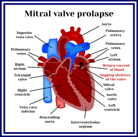 心臓の構造。僧帽弁逸脱症。心臓病理学。