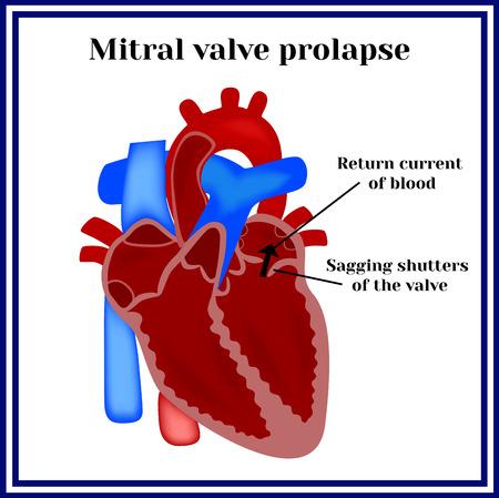 Heart structure. Mitral valve prolapse. Cardiac pathology.