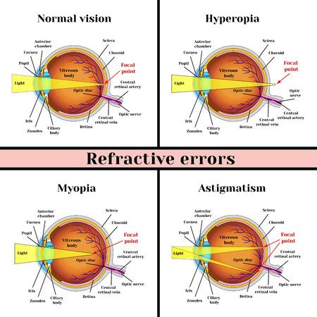 Refractive errors eyeball: hyperopia, myopia, astigmatism. Illustration