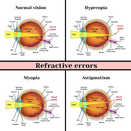 Refractive errors eyeball: hyperopia, myopia, astigmatism. Illustration