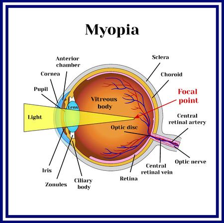 optic nerve: Refractive errors eyeball. Myopia.