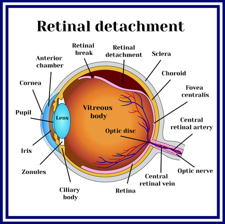 Retinal detachment. Detachment of the retina from choroid.