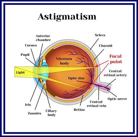 Refractive errors eyeball. Astigmatism.
