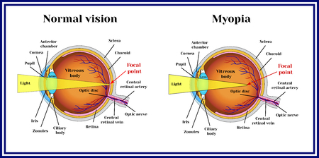 眼球の屈折異常。近視。