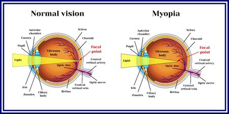 Refractive errors eyeball. Myopia.