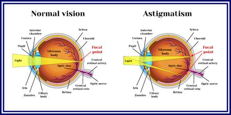 Refractive errors eyeball. Astigmatism. Zdjęcie Seryjne - 69490188