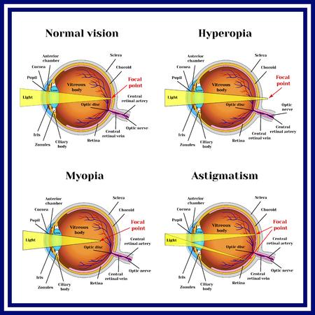 屈折異常眼球: 遠視、近視、乱視。