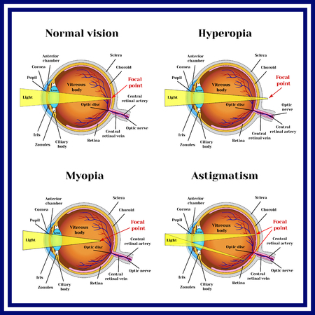 myopia: Refractive errors eyeball: hyperopia, myopia, astigmatism. Illustration