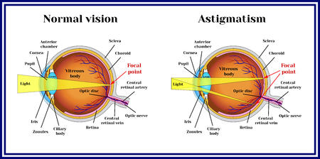 optic nerve: Refractive errors eyeball. Astigmatism.