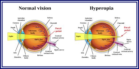 Refractive errors eyeball. Hyperopia. Ilustracja