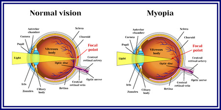 myopia: Refractive errors eyeball. Myopia.