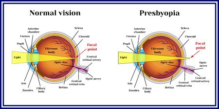 眼球の屈折異常。老眼。レンズには、その柔軟性の whith 年齢が失われます。  イラスト・ベクター素材