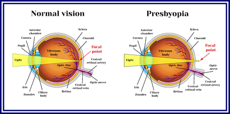 Refractive errors eyeball. Presbyopia. The lens loses its flexibility whith age.
