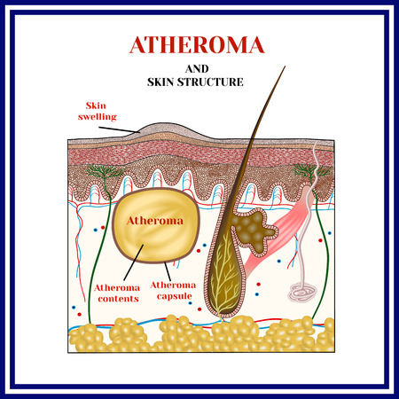 Atheroma. Cysts, tumors. Skin structure. Obstruction of the sebaceous gland.