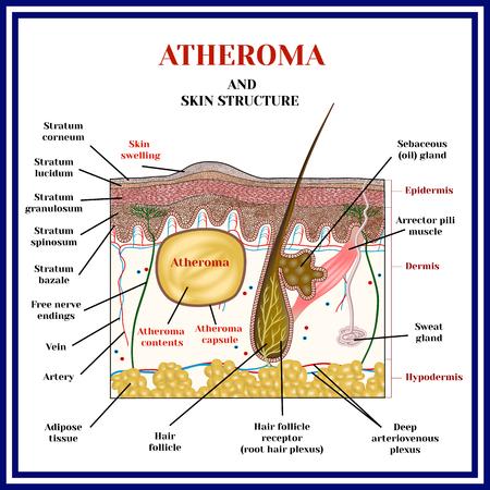 アテローマ。嚢胞、腫瘍。皮膚の構造。皮脂腺の閉塞。